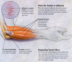 Tenniselbow_muscle