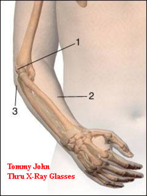 Tommyjohnsurgery